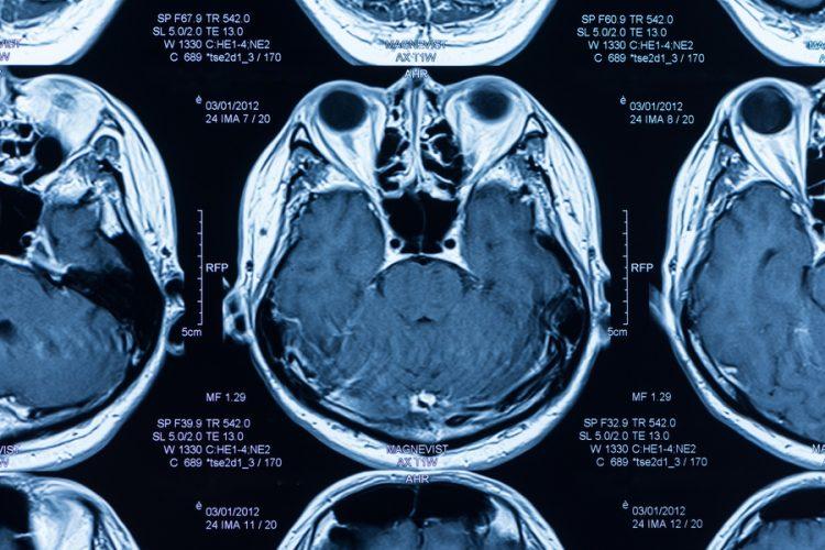 MRI-750x500